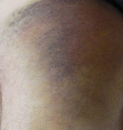 My torn hamstring the next morning. By the end of the day the brusing went from near my foot to part way up my back.